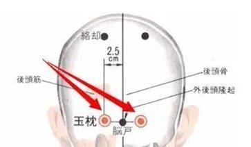 玉枕的准确位置图作用功效 玉枕的准确位置图片及作用